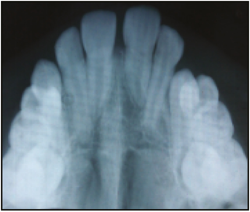 Figure 4: Follow-up occlusal radiograph